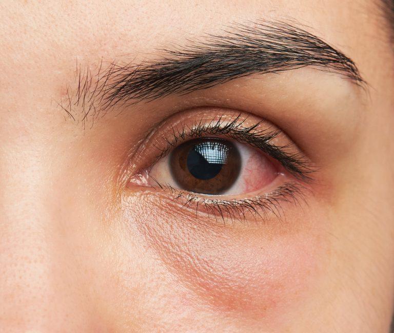 mancha en el blanco del ojo - de donde viene