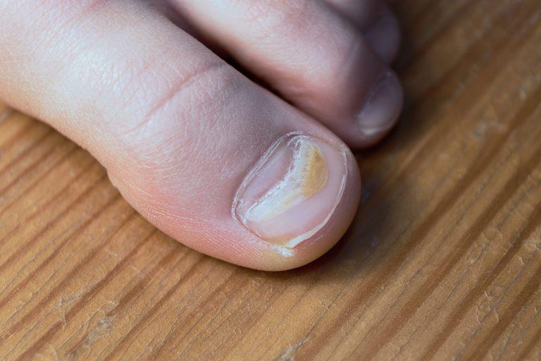 niepokojący wygląd paznokci - pasma muehrckego