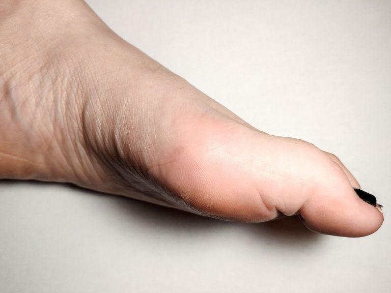 niepokojący wygląd paznokci - leczenie