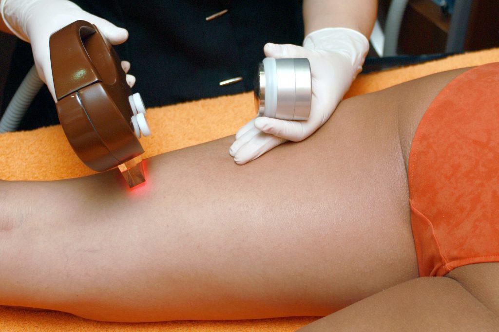 depilazione laser - trattamento