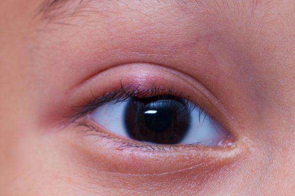 jęczmień w oku - domowe sposoby