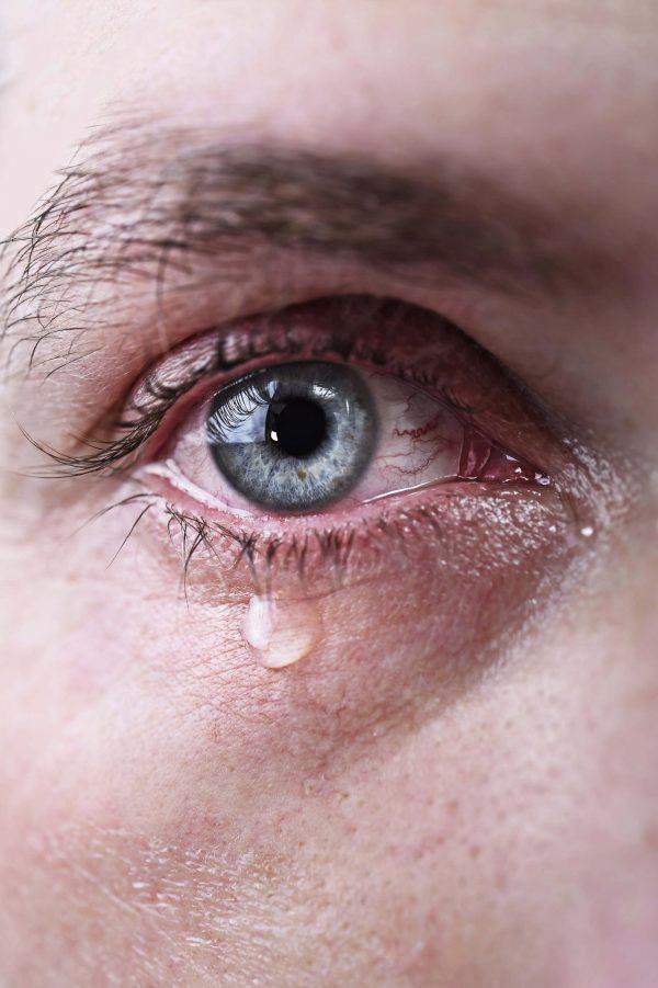jęczmień w oku - jak leczyć?