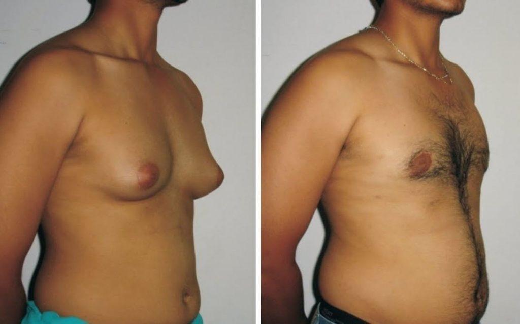 piersi u mężczyzny - ginekomastia