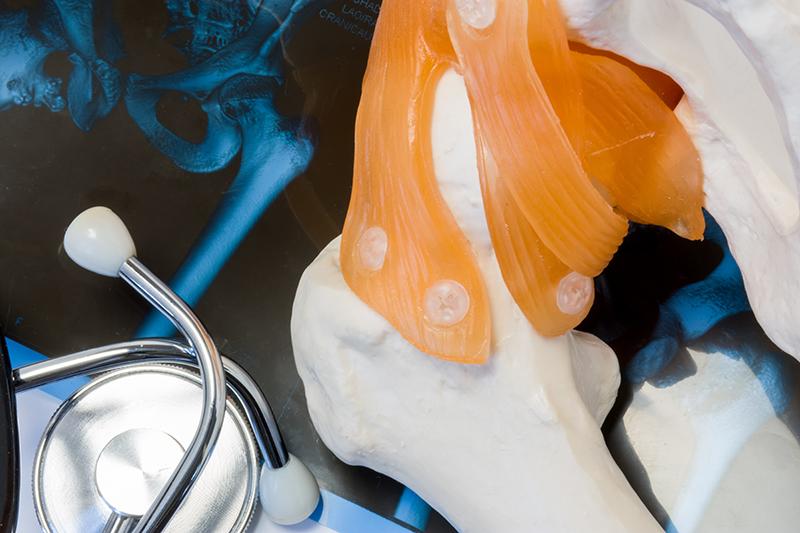 artrite - trattamento