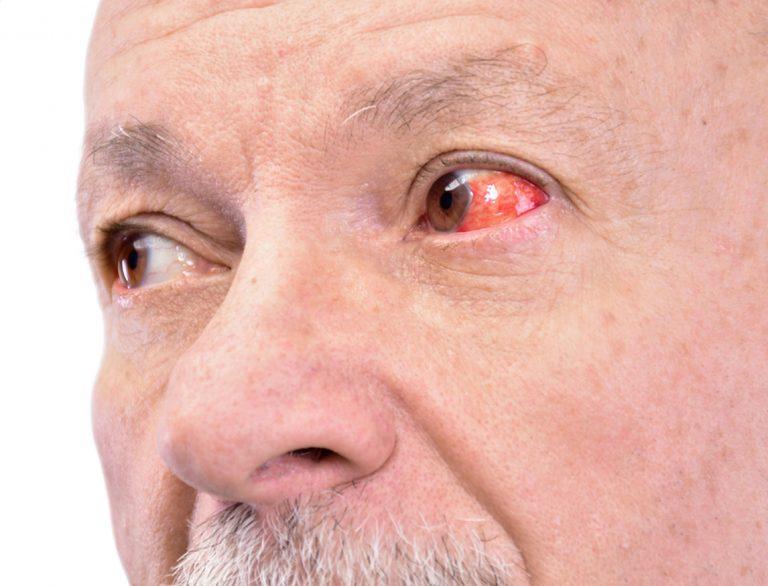 suche oko - domowe sposoby leczenia