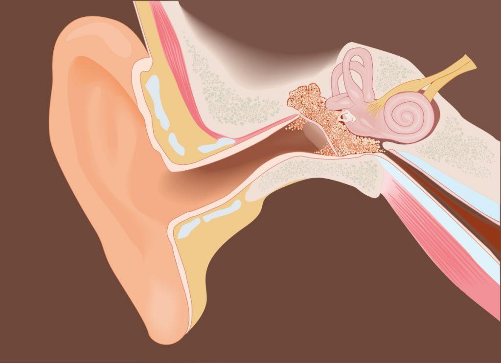 zatkane ucho