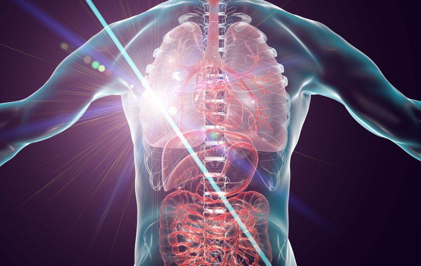 laseroterapia jako metoda leczenia