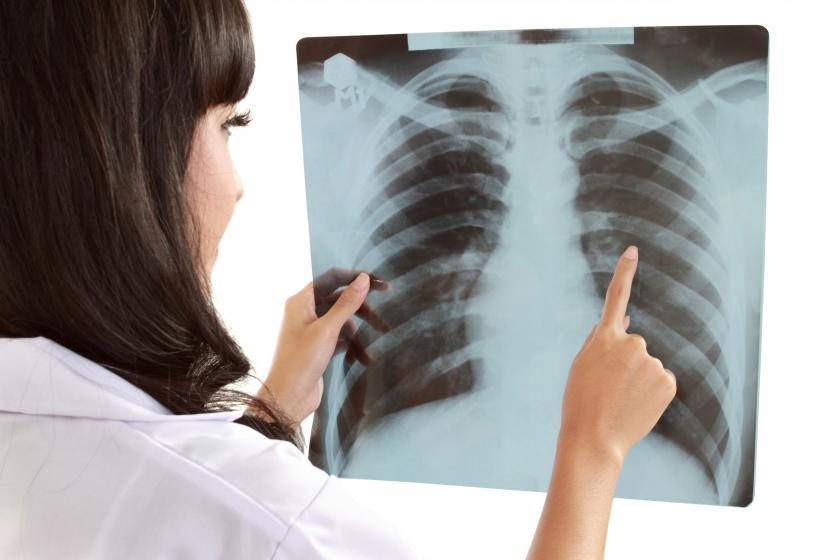 zalegająca flegma w gardle - przeswietlenie płuc