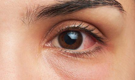 Jęczmień w oku